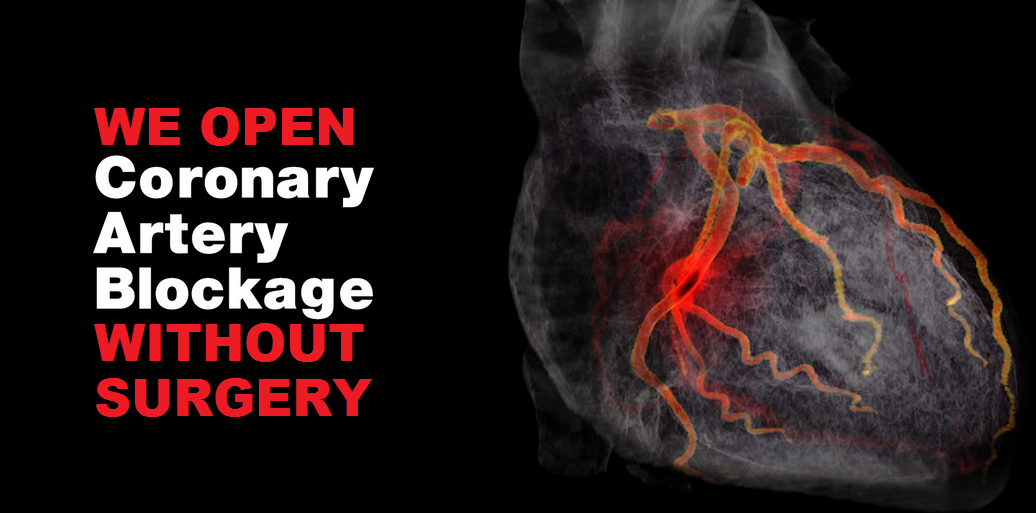 Coronary Artery Disease Blockage