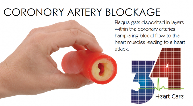 Prevent Heart Attacks by Removing Blockages