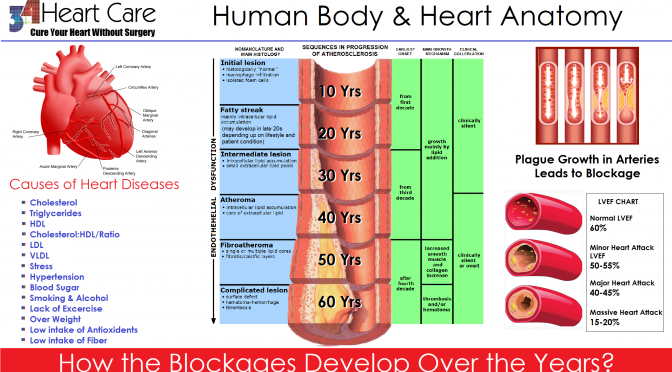 Blockage human age correlation 34 heart care blockage human age ccuart Image collections