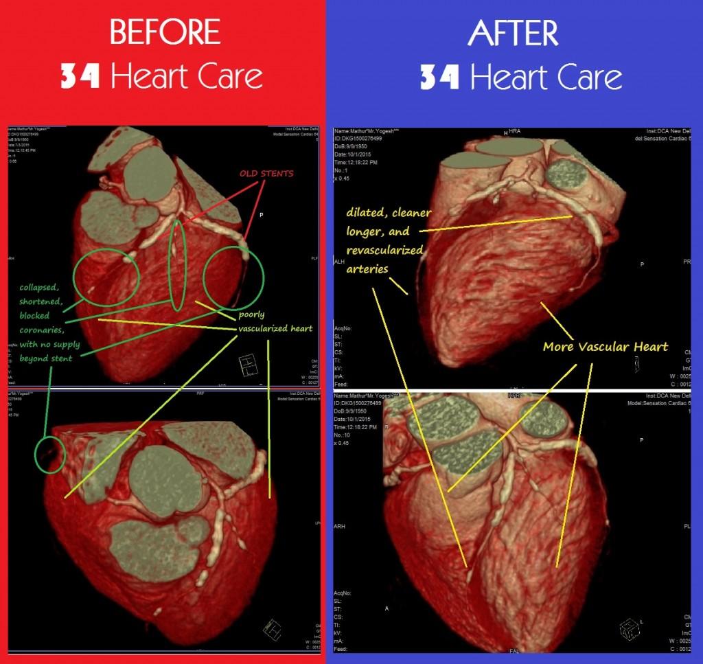 Yogesh Mathur Before & After Treatment Comparison